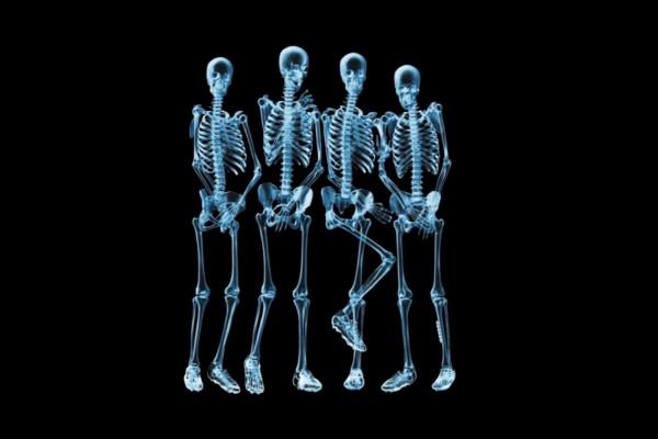 Radiografía a cuatro futbolistas