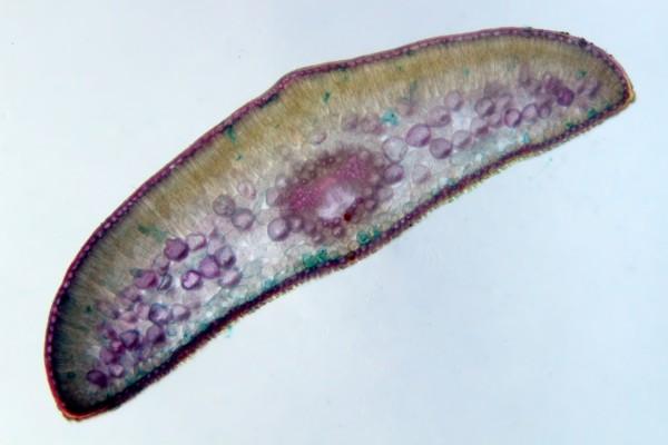 Imagen microscópica de una hoja de tejo