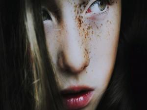 Postal: Pecas en la cara de una chica