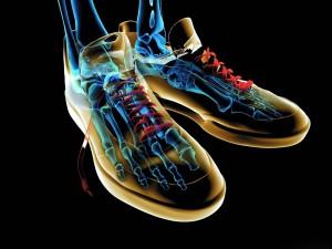 Radiografía con unas zapatillas
